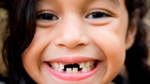 Cô gái cứ hắt hơi là... rụng răng vì bệnh lạ
