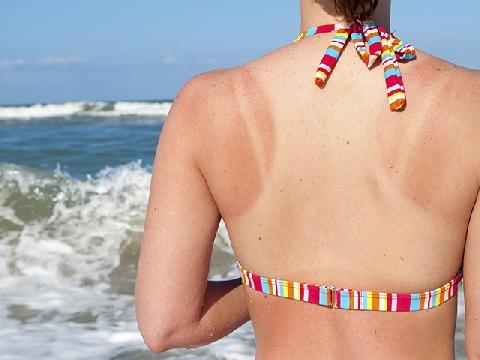 5 cách cấp cứu làn da cháy nắng tại nhà