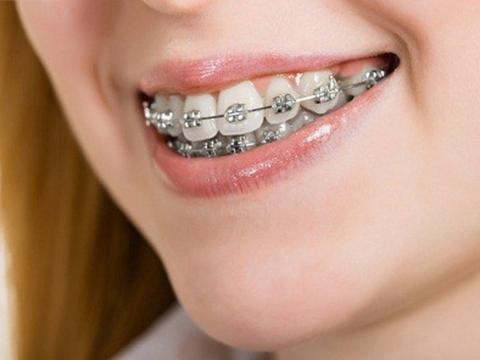 Bạn đã biết quá trình niềng răng diễn ra như thế nào chưa?