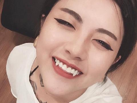 Mua răng giả gắn vào răng thật, trào lưu làm đẹp siêu nguy hiểm