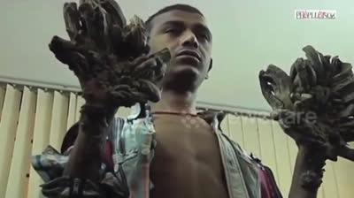 Căn bệnh 'người cây' khủng khiếp đeo bám chàng trai trẻ
