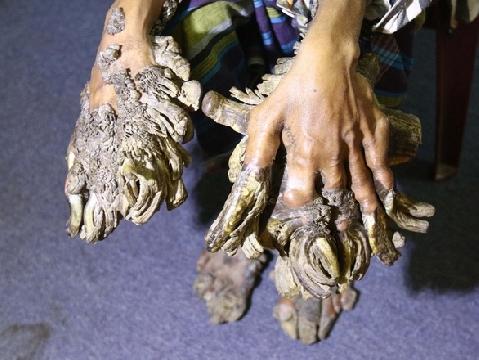 Người đàn ông có bàn tay mọc sừng tua tủa vì hội chứng ''Người cây''