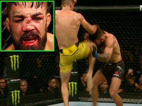 Cận cảnh pha lên gối khiến võ sĩ UFC dính chấn thương kinh hoàng