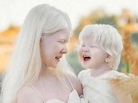 2 chị em bạch tạng đẹp trong veo đốn tim cư dân mạng