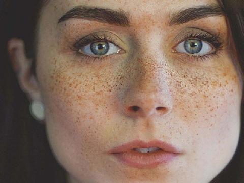 Tàn nhang hình thành trên da như thế nào?