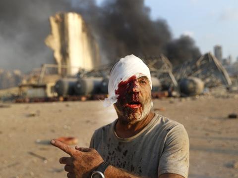 Vụ nổ 'như bom nguyên tử' ở Lebanon