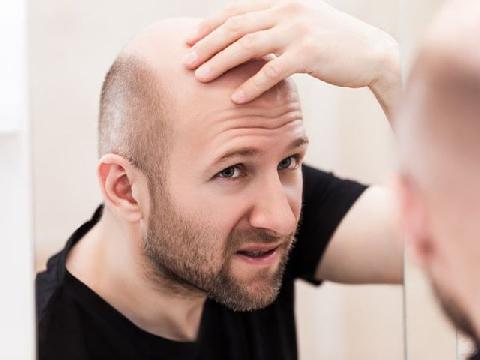 Vì sao bạn bị hói đầu?