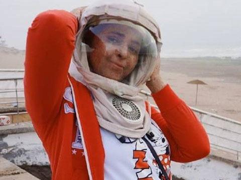 Bệnh lạ khiến cô gái 26 năm phải đội mũ… phi hành gia