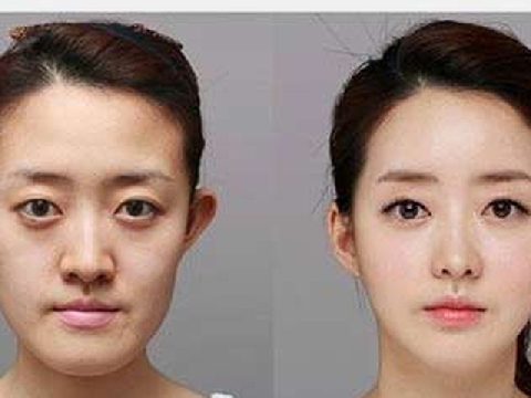 Tại sao Hàn Quốc là điểm đến trong mơ để phẫu thuật thẩm mỹ?