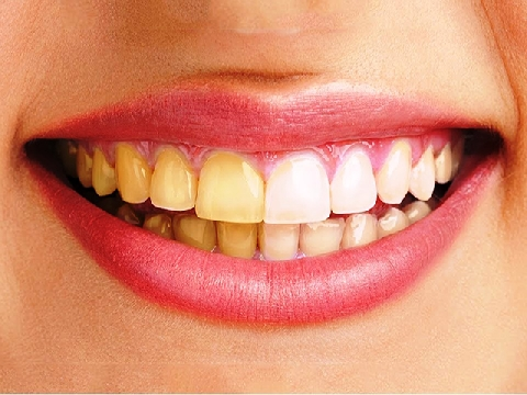Đánh bay răng ố vàng tại nhà chỉ trong một phút