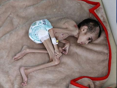 Cậu bé 7 tuổi chỉ nặng 7kg vì đói