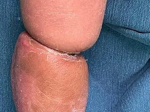 Bố mẹ tưởng con bụ bẫm, bác sĩ phát hiện trẻ bị bệnh hiếm
