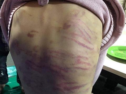Vụ bé 12 tuổi bị xâm hại: Lời khai của người mẹ và nhân tình